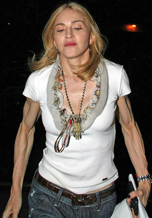 Pop singer Madonna extremely satisfied with penis arm implants