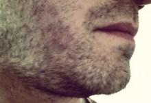 Fargo Man to Keep Vacation Beard Going